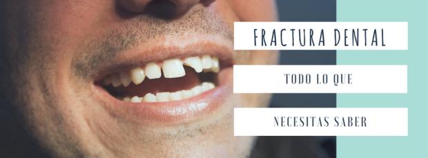 fractura dental en barcelona